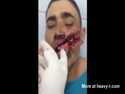 Brutal machete slash across man's face