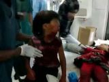 Young Childs Jaw Shot Off - Libya