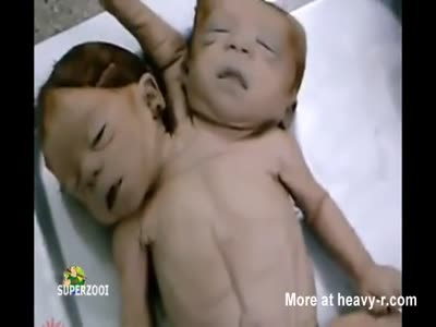 Dead Deformed Baby Bodies