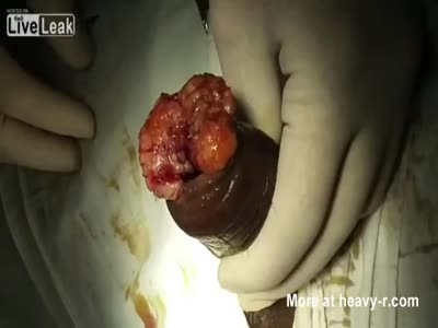 Removal of Maggots in Penis