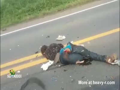 Ass Prolapse After Motorcycle Accident