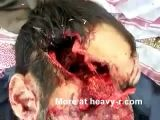 Amazing head wounds - must see
