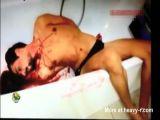 throat slit in bathtub